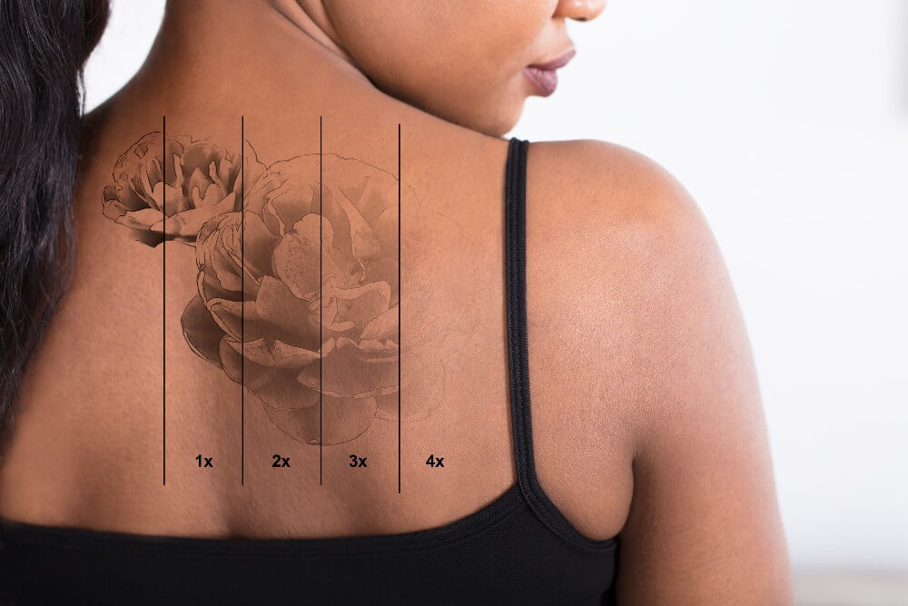 Black woman's tattoo gradually disappears from her dark skin with each laser tattoo removal session